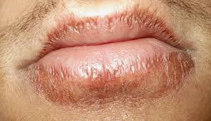 Angular Cheilitis Symptoms